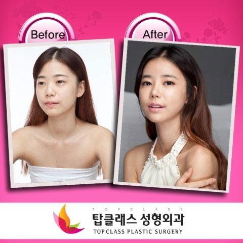 labananequiparle-avantapres-chirurgie-esthetique-coree-du-sud1