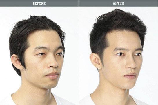 labananequiparle-avantapres-chirurgie-esthetique-coree-du-sud10