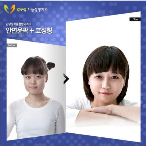 labananequiparle-avantapres-chirurgie-esthetique-coree-du-sud12