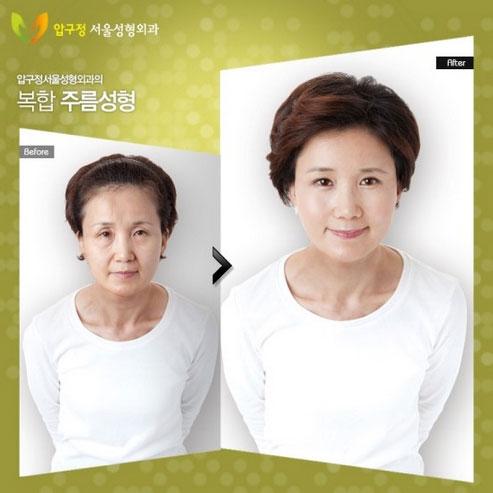 labananequiparle-avantapres-chirurgie-esthetique-coree-du-sud14