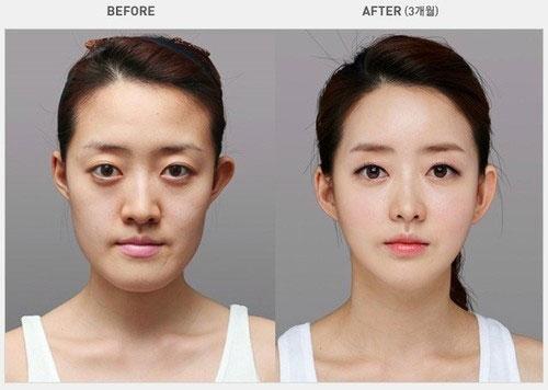 labananequiparle-avantapres-chirurgie-esthetique-coree-du-sud15