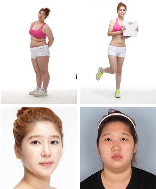 labananequiparle-avantapres-chirurgie-esthetique-coree-du-sud19