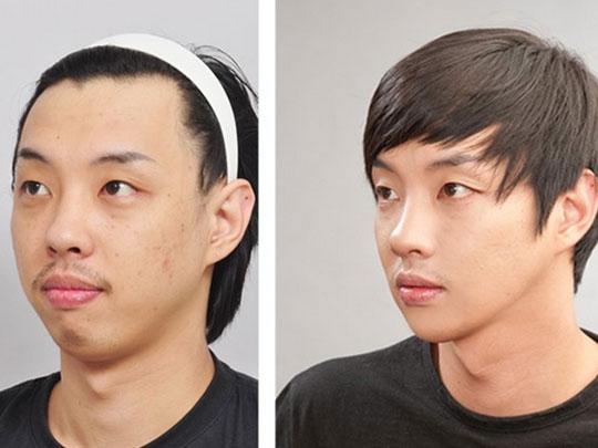 labananequiparle-avantapres-chirurgie-esthetique-coree-du-sud2