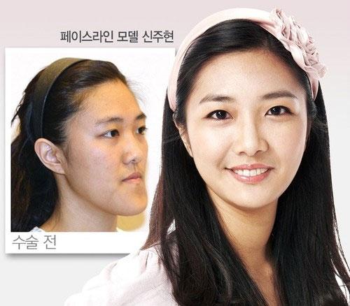 labananequiparle-avantapres-chirurgie-esthetique-coree-du-sud21