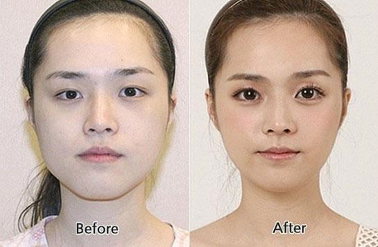 labananequiparle-avantapres-chirurgie-esthetique-coree-du-sud22
