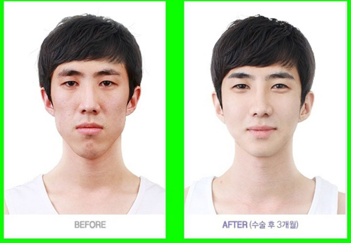 labananequiparle-avantapres-chirurgie-esthetique-coree-du-sud3