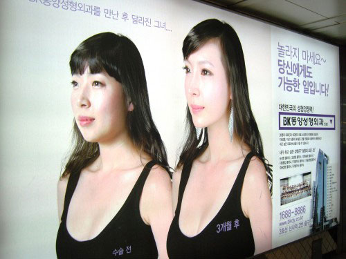 labananequiparle-avantapres-chirurgie-esthetique-coree-du-sud31