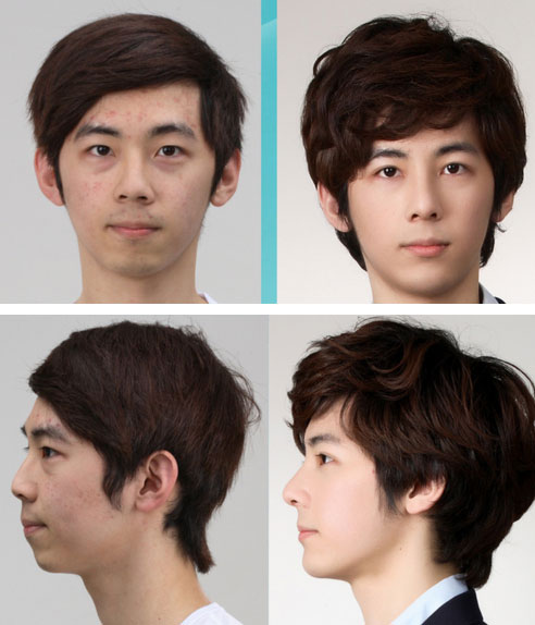 labananequiparle-avantapres-chirurgie-esthetique-coree-du-sud33