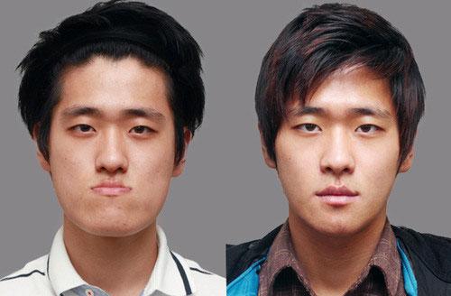 labananequiparle-avantapres-chirurgie-esthetique-coree-du-sud4
