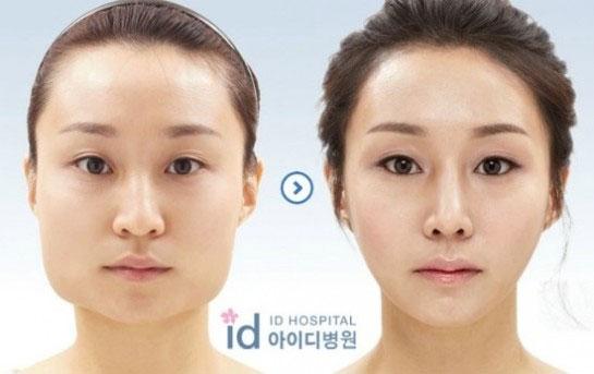 labananequiparle-avantapres-chirurgie-esthetique-coree-du-sud5