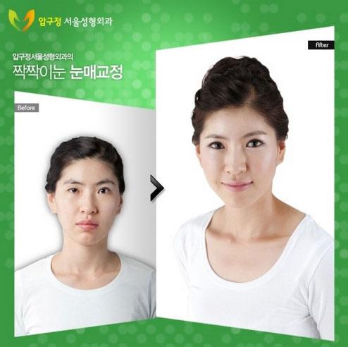 labananequiparle-avantapres-chirurgie-esthetique-coree-du-sud6