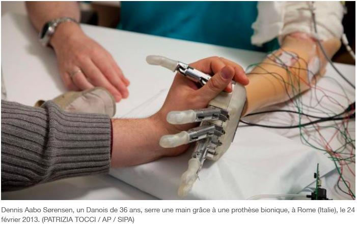 labananequiparle-bras-bionique2