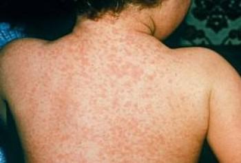 labananequiparle-maladie-mortelle-8