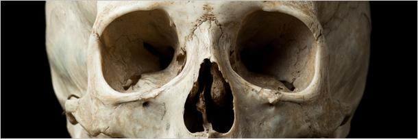 labananequiparle-squelette-1