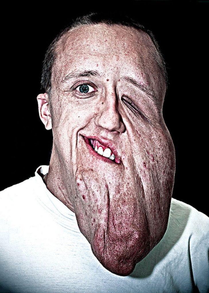 labananequiparle-visages-defigures-11