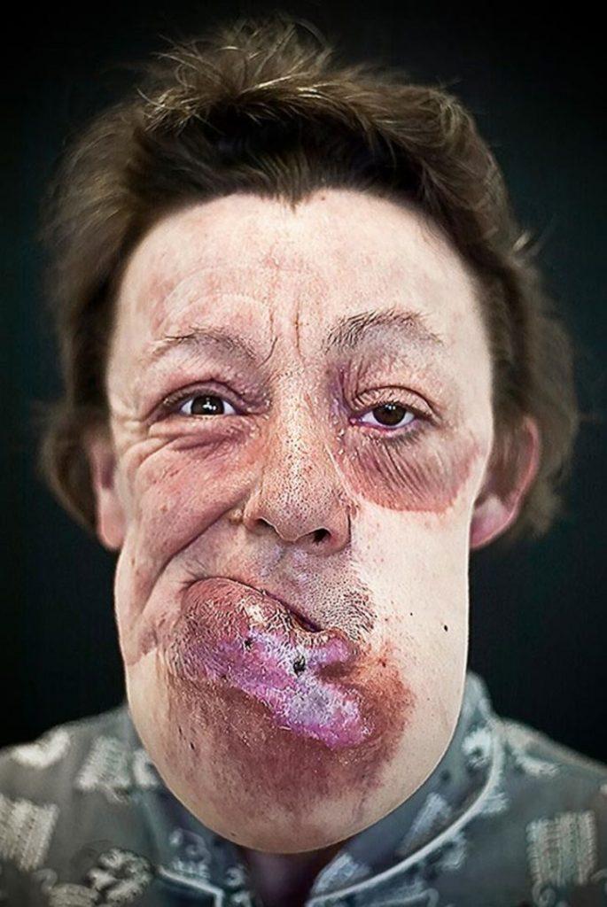 labananequiparle-visages-defigures-5